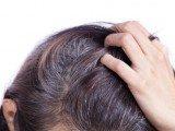 Dieta ferma caduta capelli